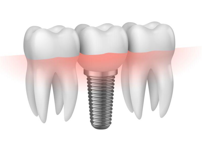 Offerta Implantologia a carico immediato Reggio Emilia - Protesi dentale fissa mobile