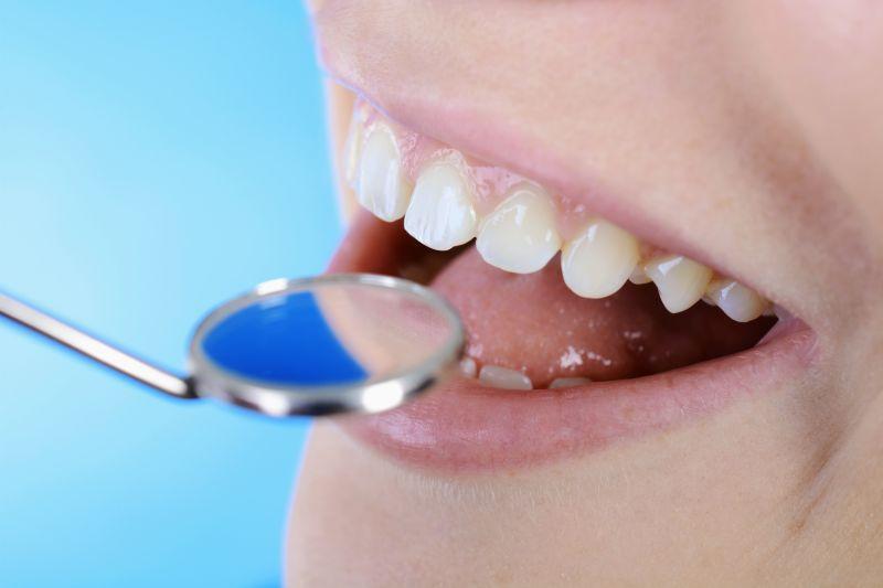 Offerta cura delle carie dentali -Promozione trattamento del mal di denti Modena Sassuolo Carpi